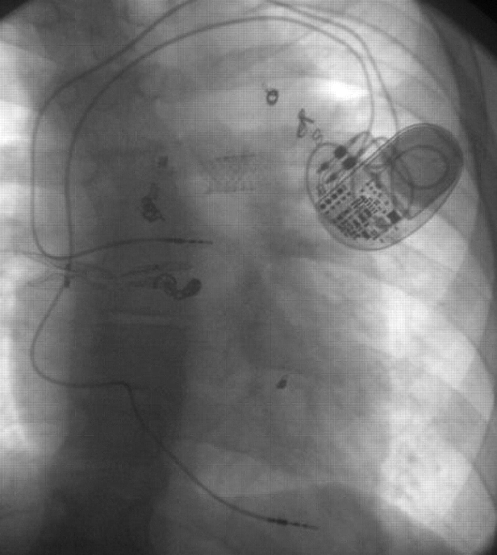 Cardiac pacing in infants and children   Heart