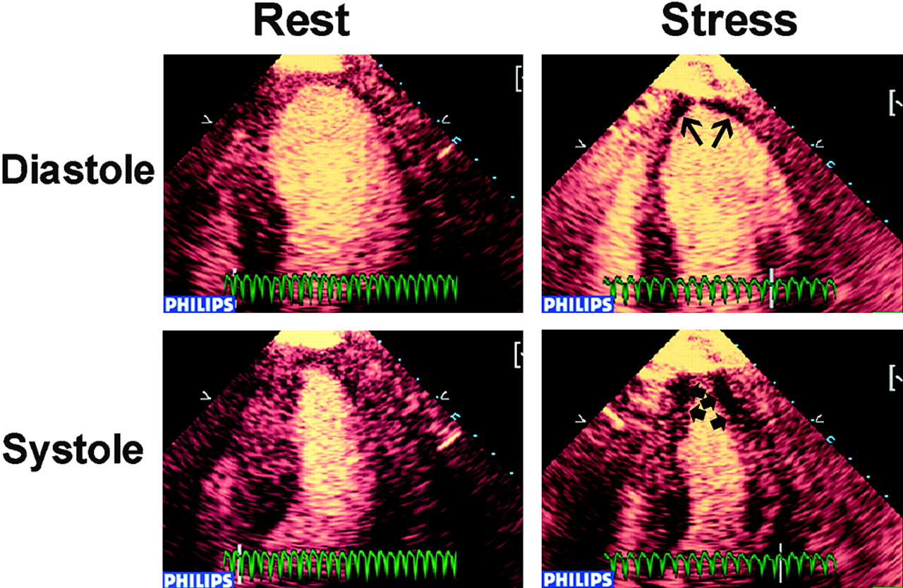 Real Time Perfusion Echocardiography During Treadmill Exercise And Dobutamine Stress Testing