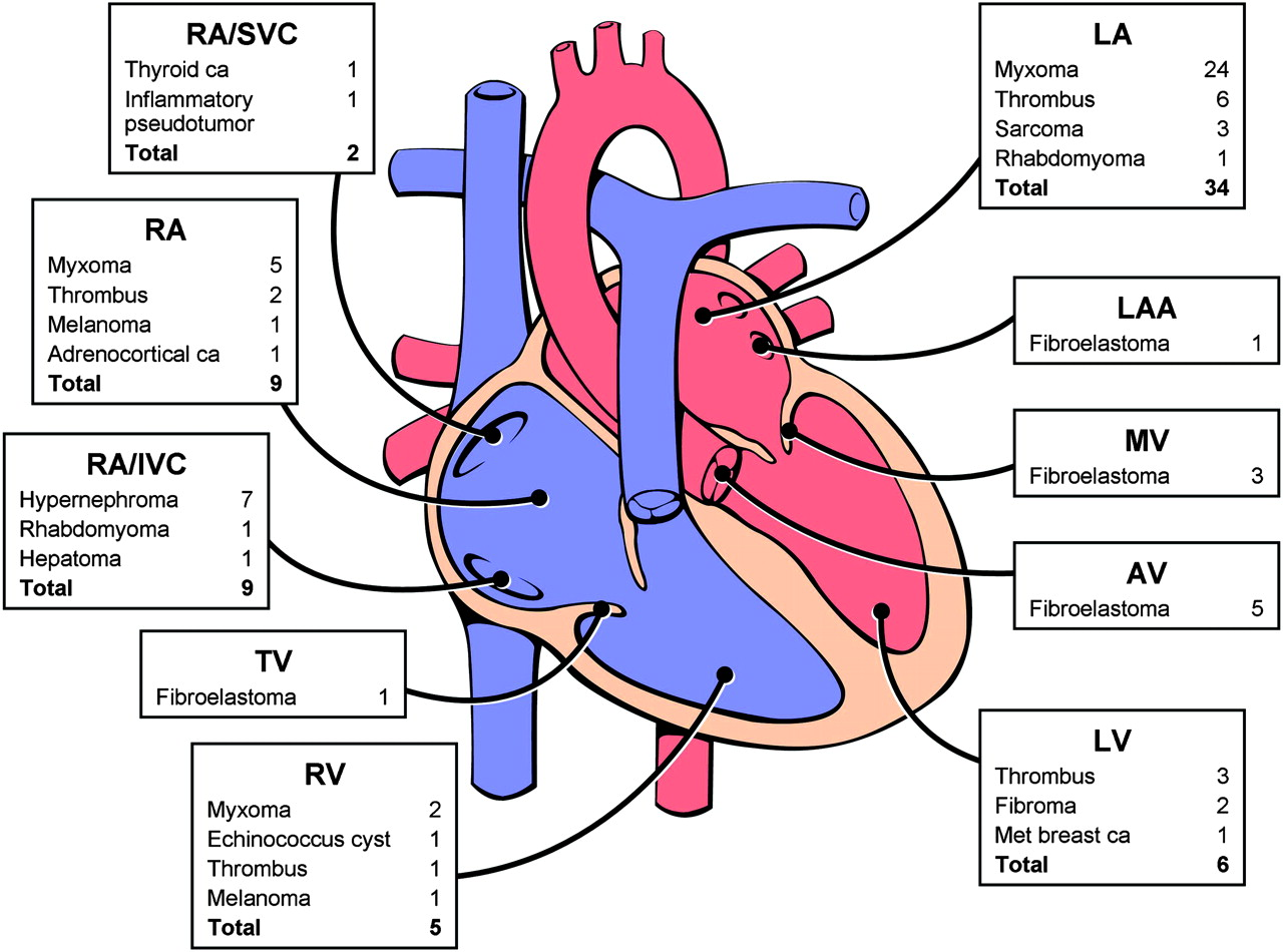 Cardiac Tumours Diagnosis And Management Heart