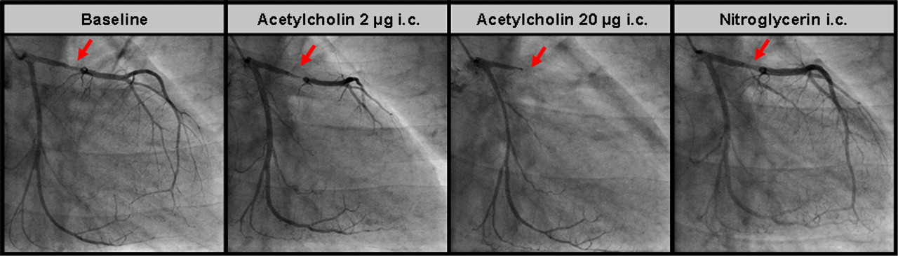 Angina Pectoris In Patients With Normal Coronary Angiograms Current