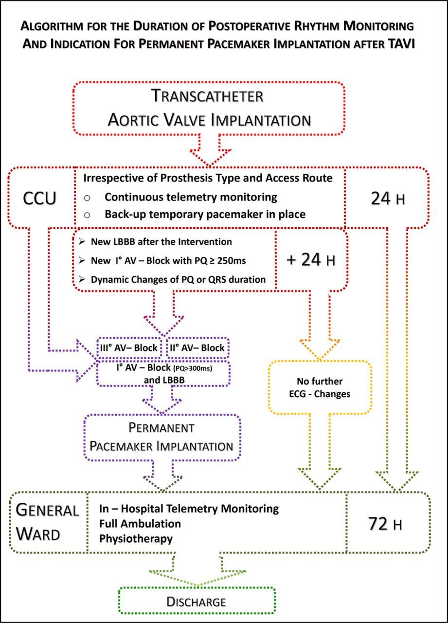 transcatheter aortic valve implantation