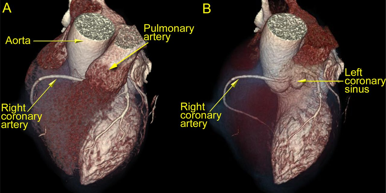 Acute coronary syndrome with a malignant course of an unobstructed ...
