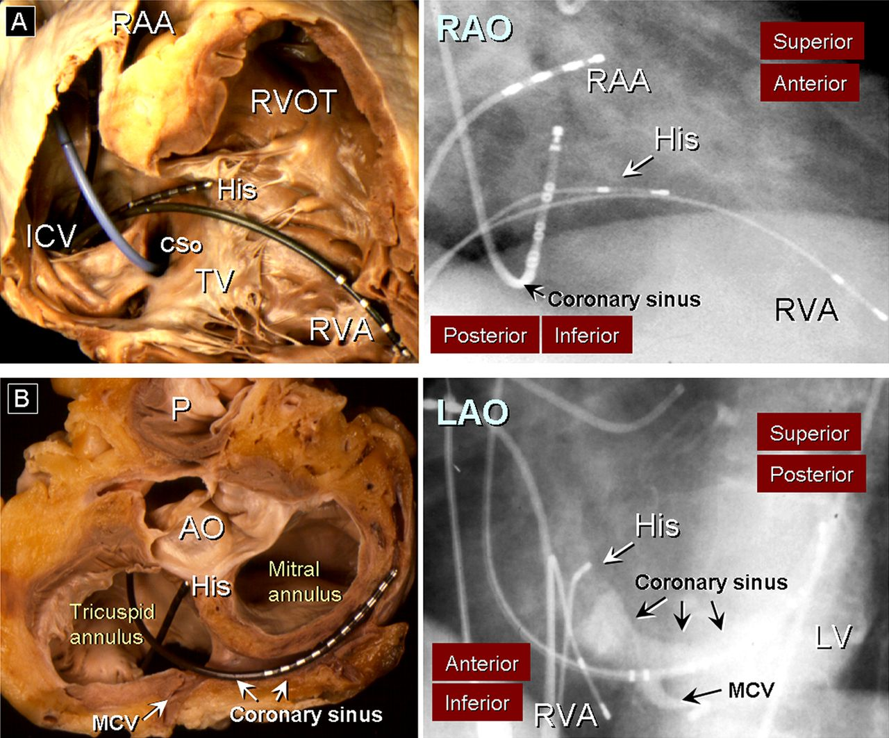 Cardiac anatomy: what the electrophysiologist needs to know | Heart
