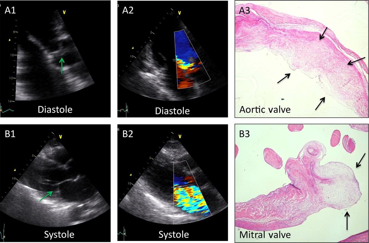 Fakta Tentang Jantung Murmur Abnormal