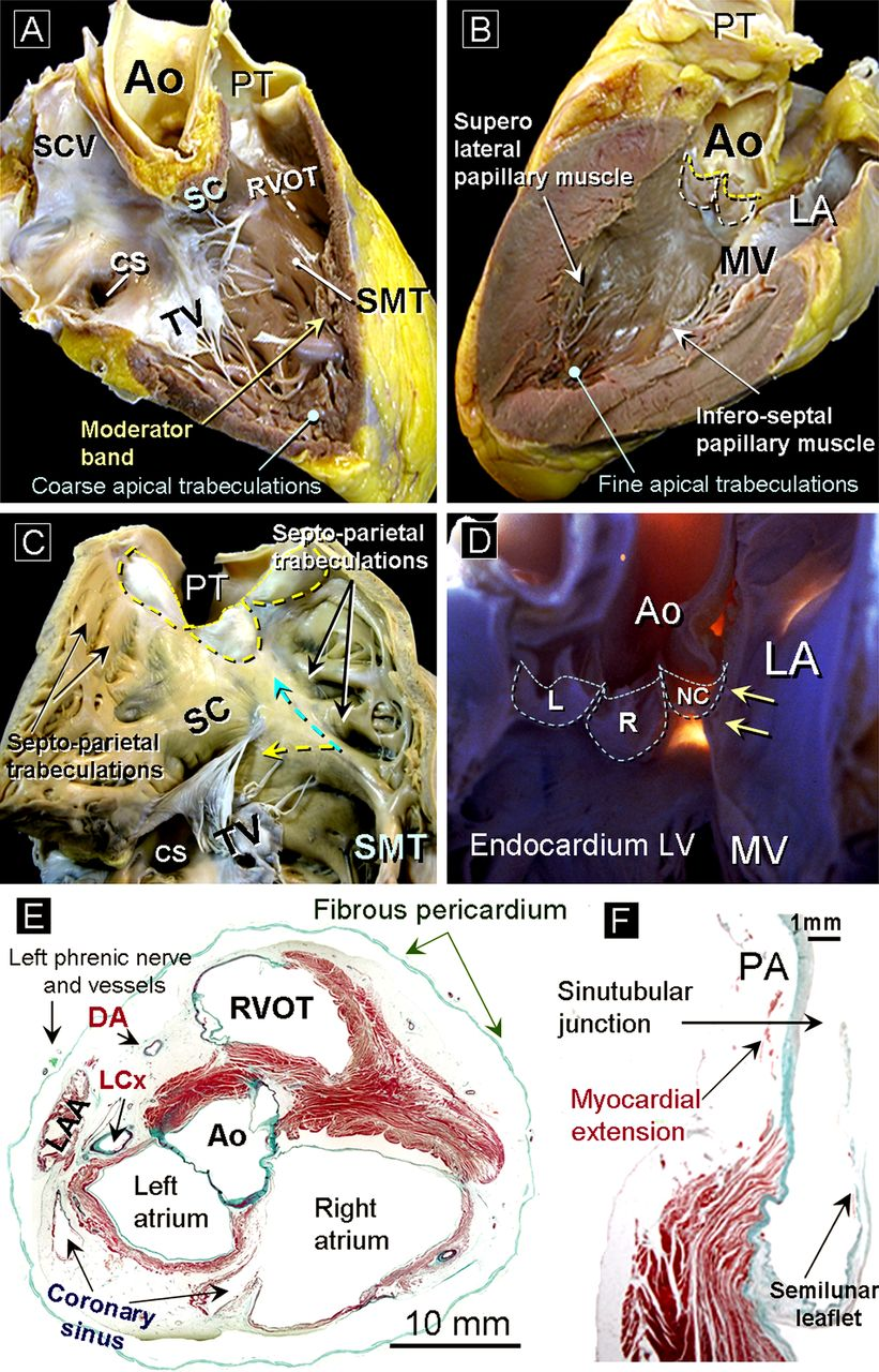 Cardiac anatomy: what the electrophysiologist needs to know   Heart