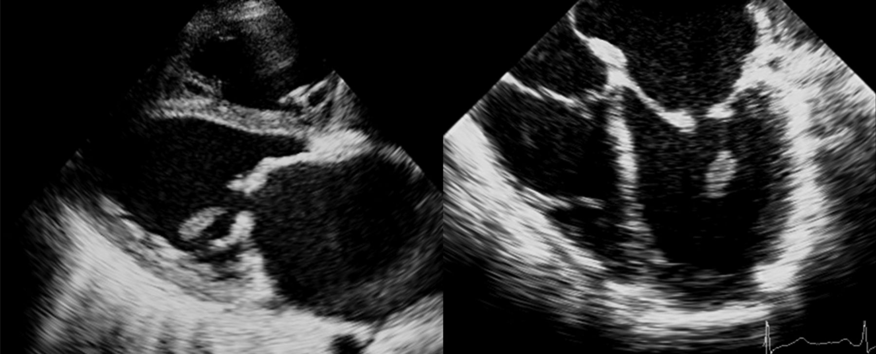 Echocardiography Of A Woman After Valve Intervention Heart