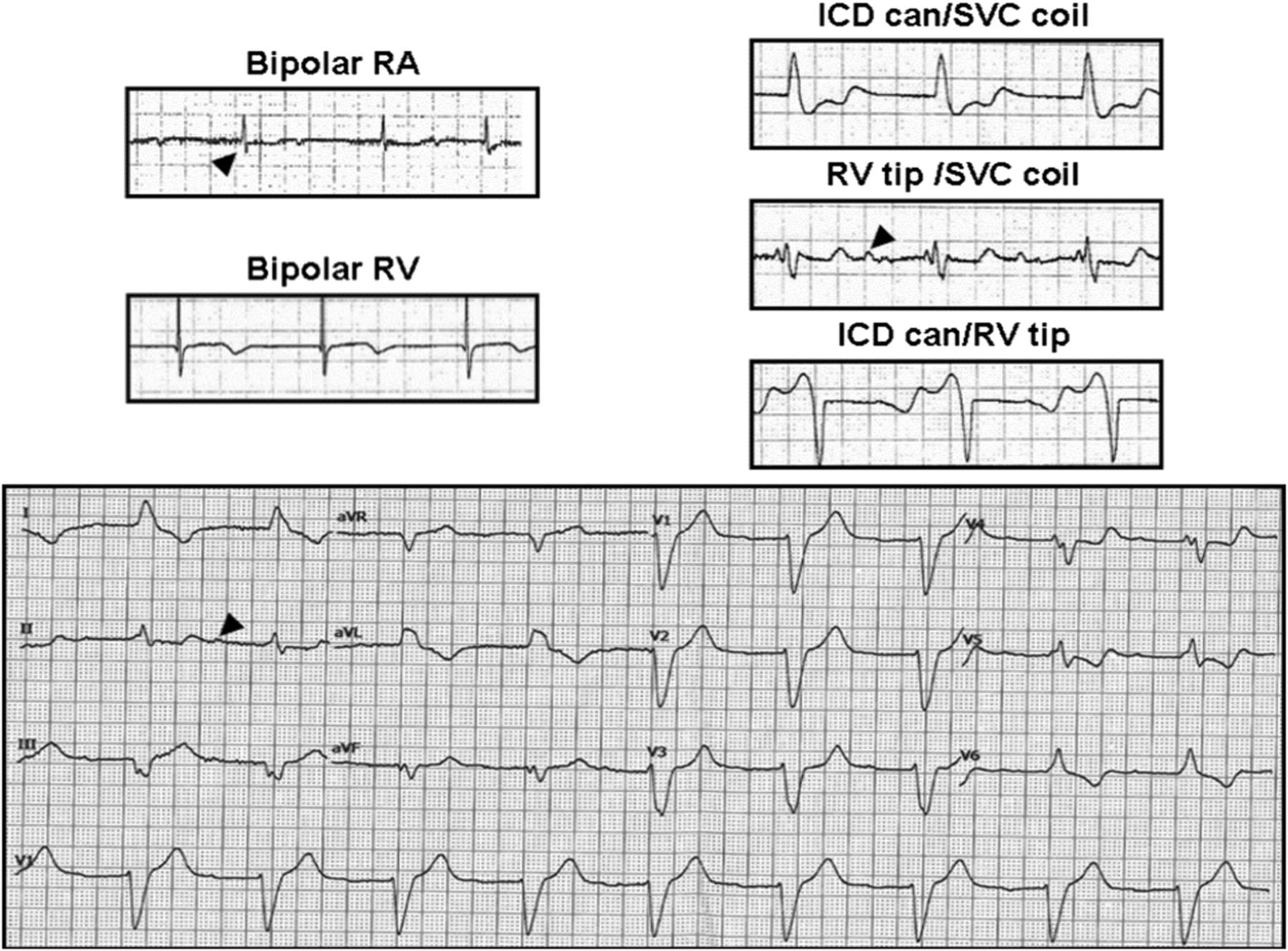 Holter Ecg For Pacemaker Defibrillator Carriers What Is Its Role In 83 Pace Arrow Wiring Diagram Download Figure