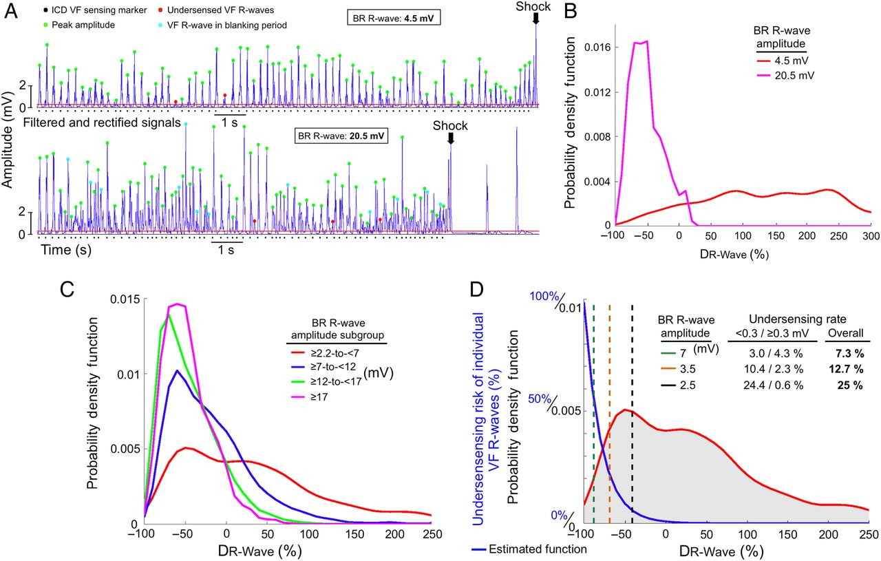 safety threshold of r wave amplitudes in patients with implantable