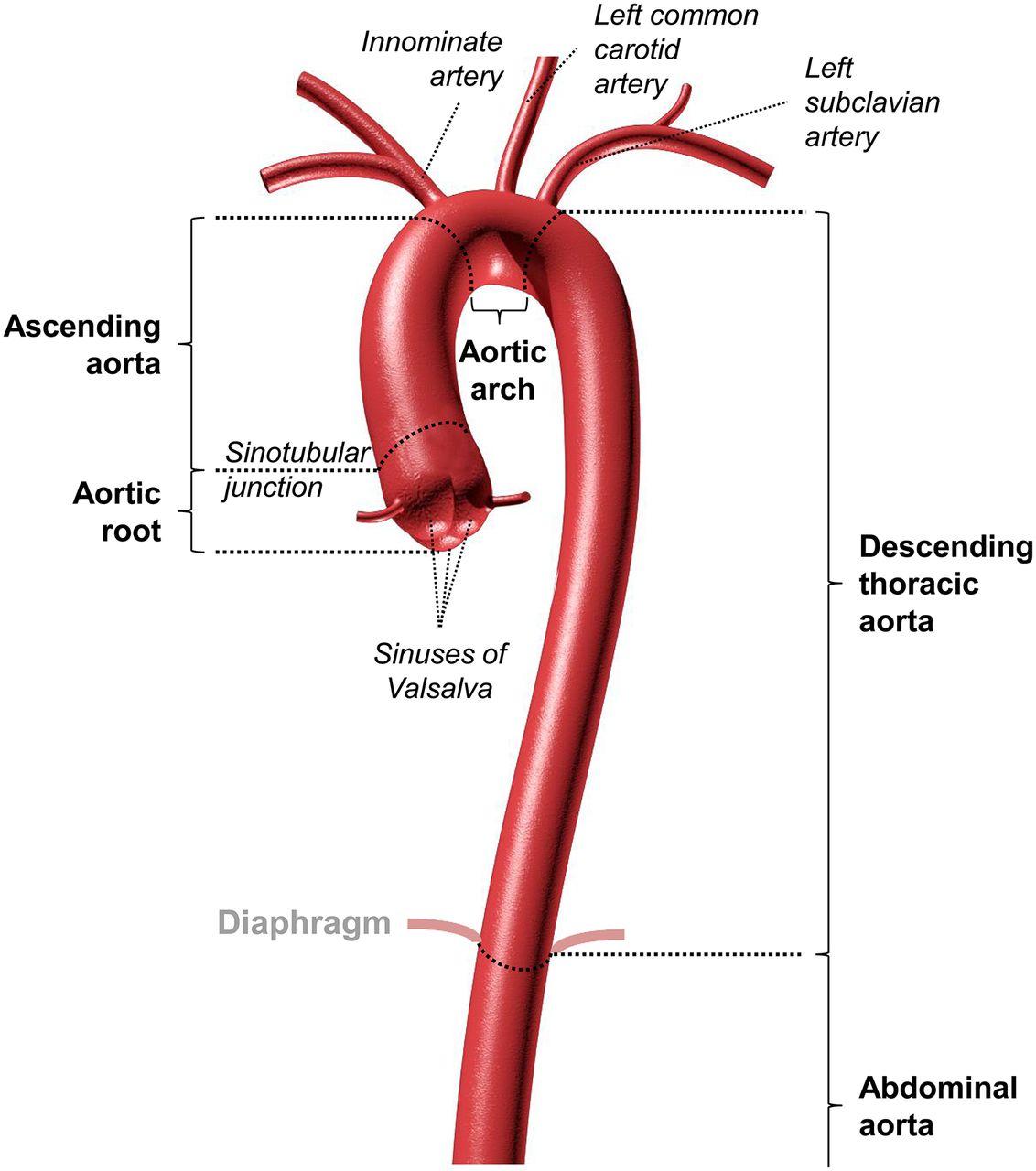 Aortopathies In Adult Congenital Heart Disease And Genetic