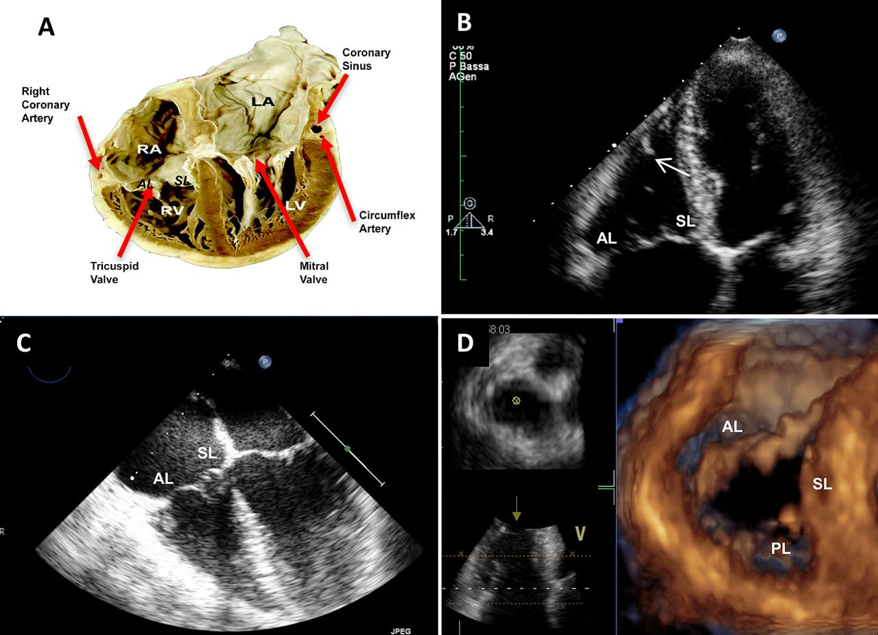 Multimodality Imaging Of The Tricuspid Valve With Implication For