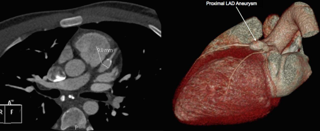 Kawasaki Disease Coronary Artery Aneurysm Ct