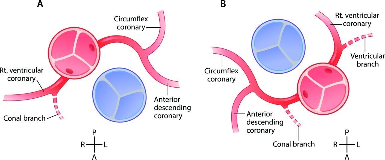 Contemporary management and outcomes in congenitally corrected