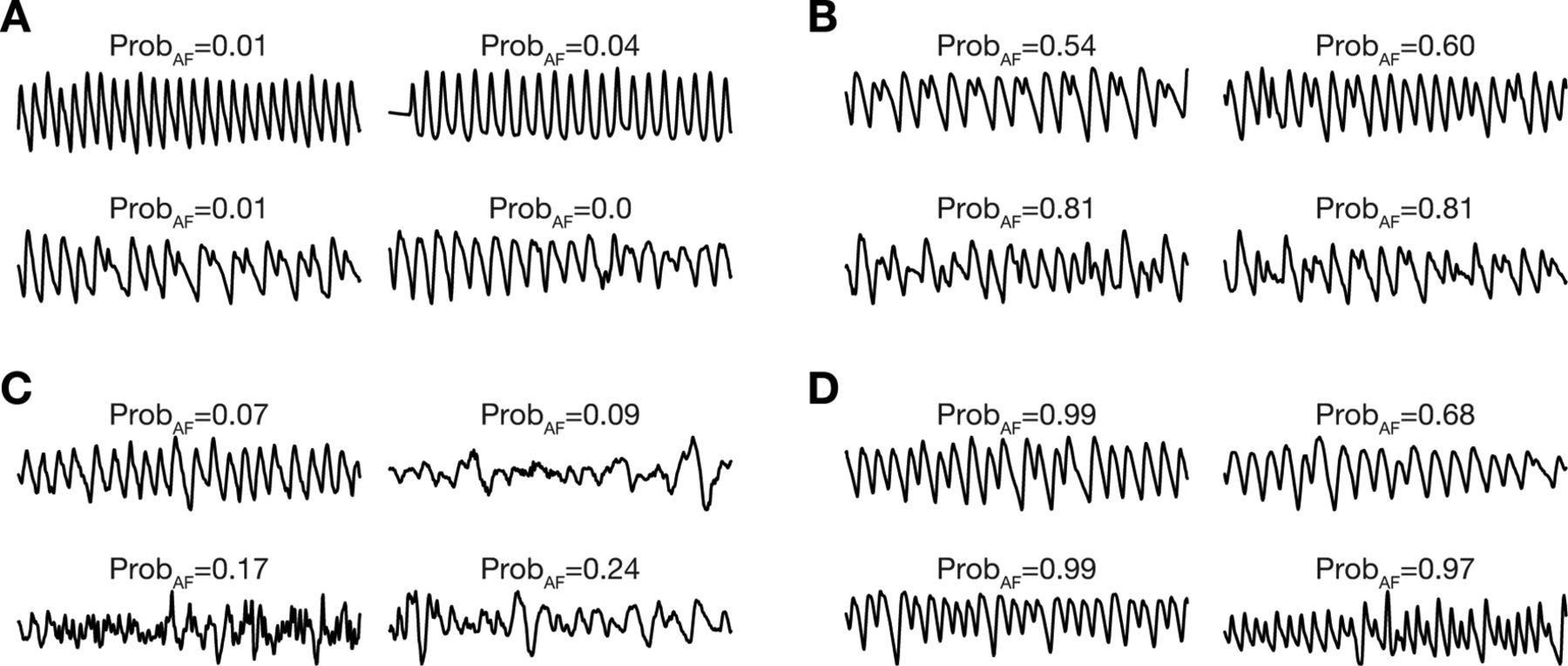 Diagnostic assessment of a deep learning system for detecting atrial