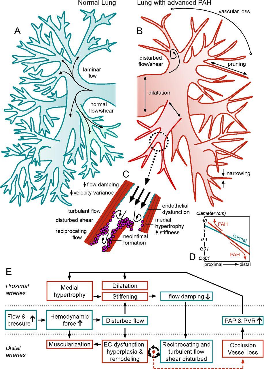 Assessment of reversibility in pulmonary arterial hypertension and