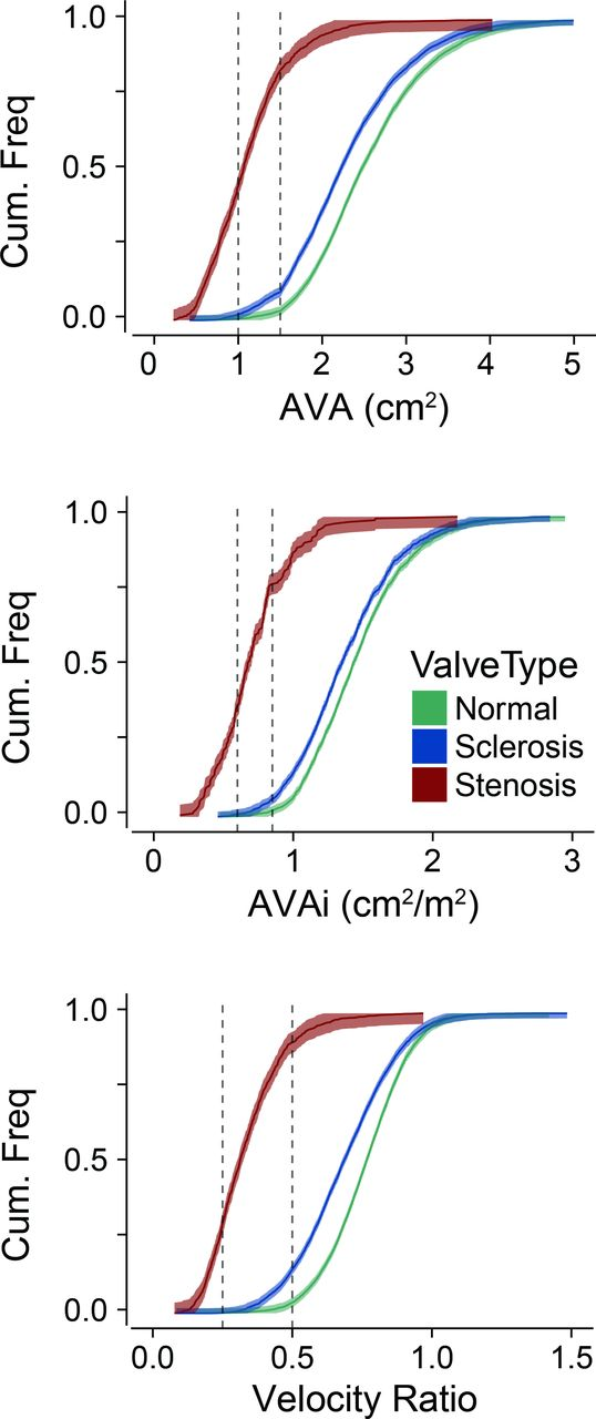 Valve area and the risk of overestimating aortic stenosis | Heart