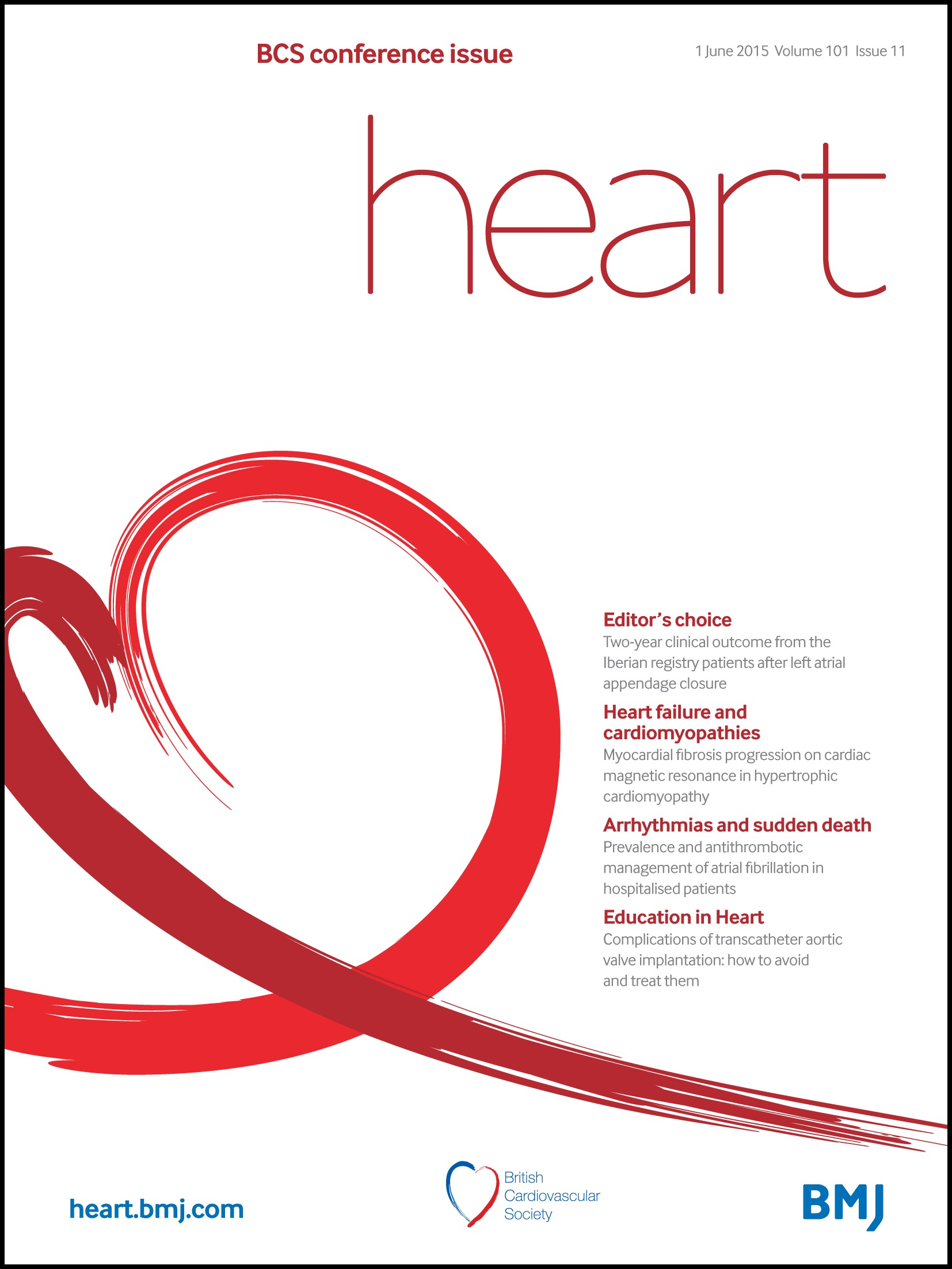 Heart rate is associated with progression of atrial