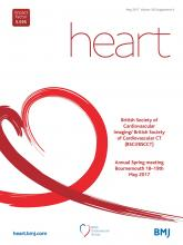 Heart: 103 (Suppl 4)