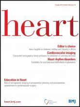 Heart: 99 (14)